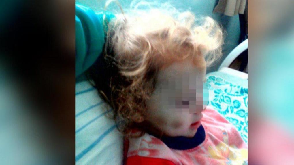 В больницу попала избитая четырехлетняя девочка с проколотыми ладошками. Мама считает, что всё нормально