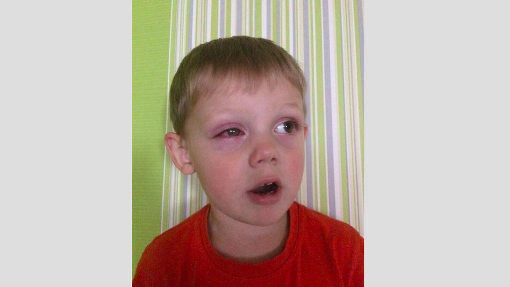 «Глаз буквально разрезан пополам». Мальчик получил жуткую травму в садике, но этого никто не заметил