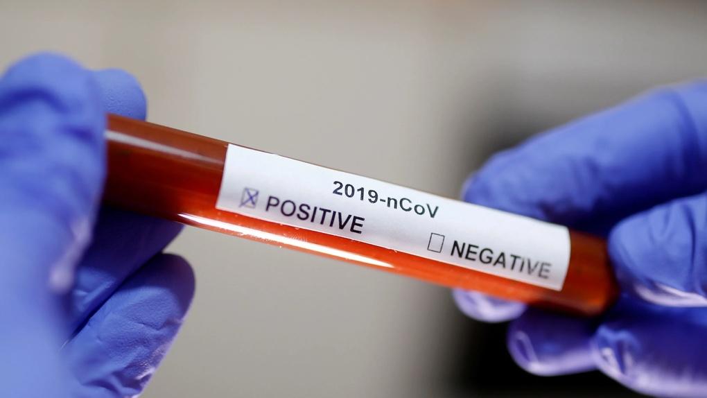 Результаты тестов на антитела к коронавирусу противоречат официальной статистике. Кто врет?